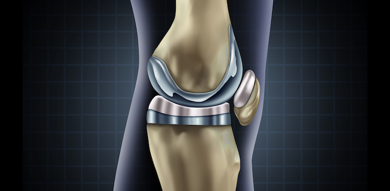 knee replacement pain
