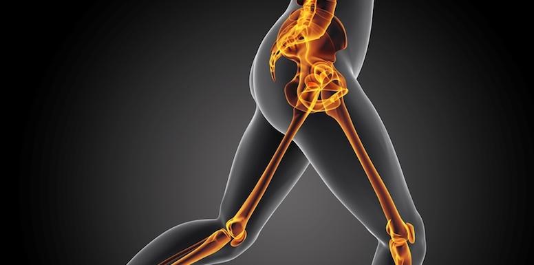 hip bursitis pain